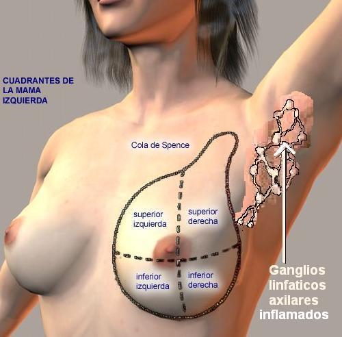 Dolor en el seno izquierdo